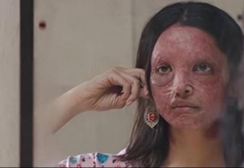 Deepika Padukone shows the strength and pain of acid attack survivors in powerful film