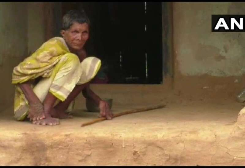They believe I'm a witch and stay away from me: Tragic story of Odisha woman born with 20 toes & 12 fingers