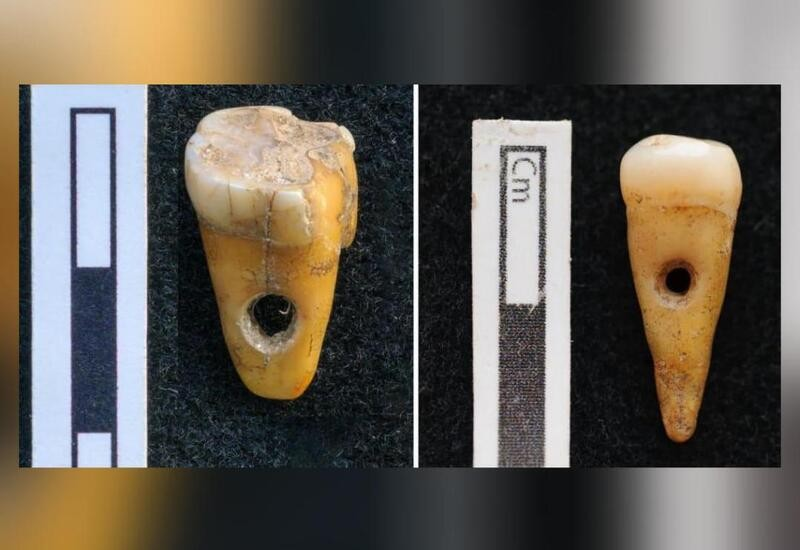 2 human teeth used as jewellery 8,500 years ago found in Turkey