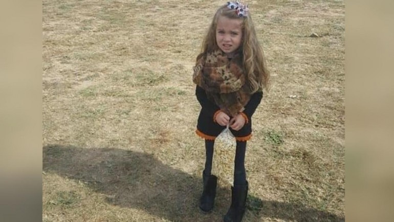 What happened to her legs? See the Optical Illusion pic of Little Girl and find Out